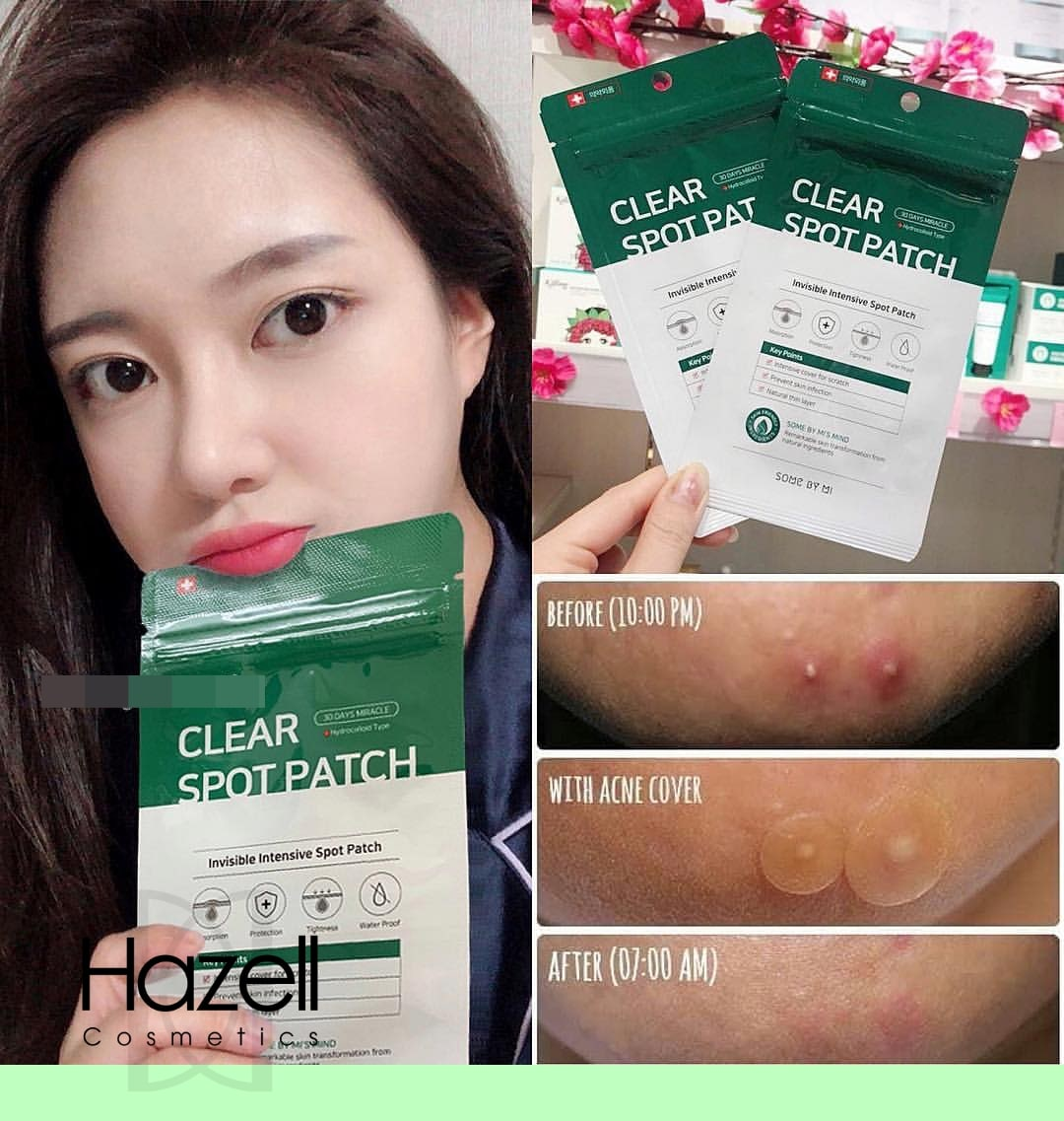 30 Days Miracle Clear Spot Patch [Some By Mi]
