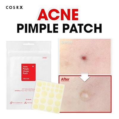Acne Pimple Master Patch [COSRX]