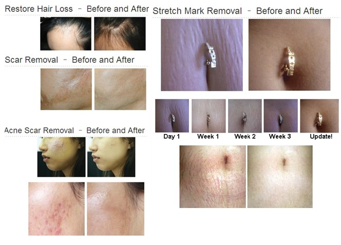 derma roller treatment pictures