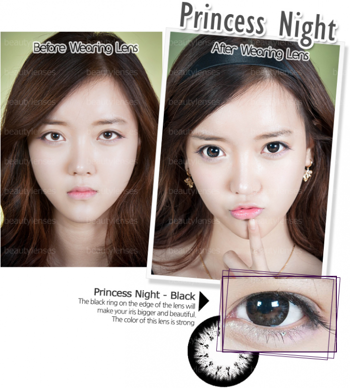 DOX CONTACT LENS